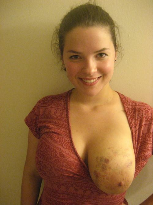【※生傷注意※】閲覧注意・ドS彼氏と付き合ってる女性の身体画像ギャラリー・・・あかん。(画像30枚) 01
